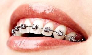 aparat-dentar-metalic