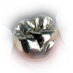 coroana dentara metalica