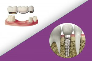 Implant-Dentar-Sau-Punte