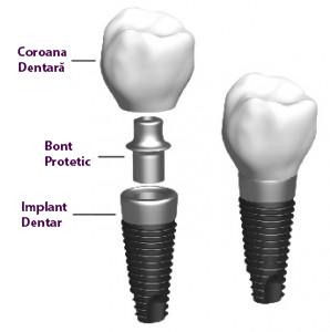 implant-dentar-componente