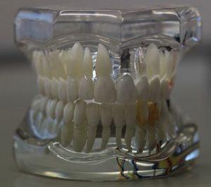 implant-dentar-varsta