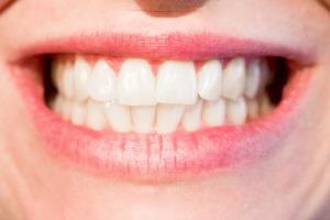 detartraj dentar